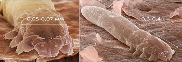 демодекс под микроскопом
